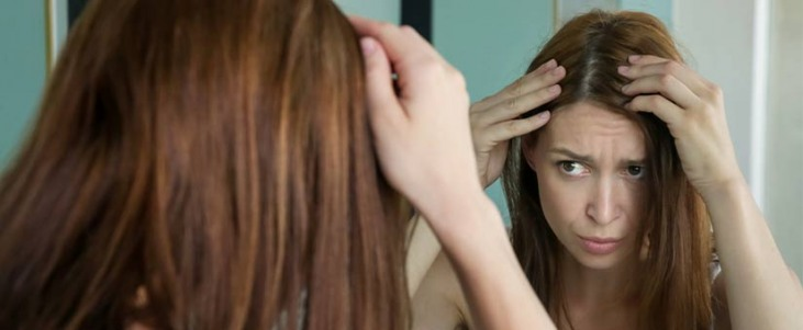 wypadanie włosów peruki